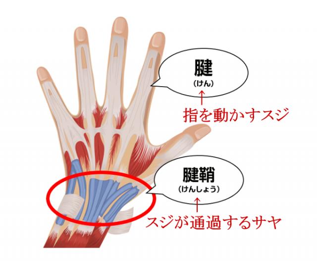腱鞘炎の説明画像